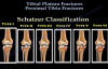 Tibial Plateau Fractures Proximal Tibia Fractures  Everything You Need To Know  Dr. Nabil Ebraheim