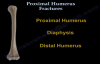 Proximal Humerus Fractures classification  Everything You Need To Know  Dr. Nabil Ebraheim
