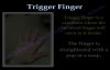 Trigger Finger and thumb  Everything You Need To Know  Dr. Nabil Ebraheim
