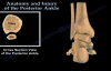 Posterior Ankle , Anatomy And Injury  Everything You Need To Know  Dr. Nabil Ebraheim