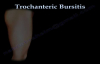 Trochanteric Bursitis , hip bursitis Everything You Need To Know  Dr. Nabil Ebraheim