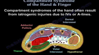 Compartment Syndrome Of The Hand & Finger  Everything You Need To Know  Dr. Nabil Ebraheim