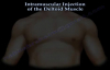 Deltoid Intramuscular injection  Everything You Need To Know  Dr. Nabil Ebraheim