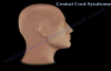 Central Cord Syndrome  Everything You Need To Know  Dr. Nabil Ebraheim