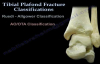 Pilon Fracture, Tibial Plafond Fracture  Everything You Need To Know  Dr. Nabil Ebraheim