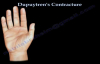 Dupuytrens Contracture  Everything You Need To Know  Dr. Nabil Ebraheim