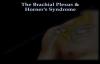 The Brachial Plexus & Horners Syndrome  Everything You Need To Know  Dr. Nabil Ebraheim