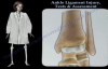 Ankle Ligament Injury Tests & Assessment  Everything You Need To Know  Dr. Nabil Ebraheim