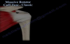 Massive Rotator Cuff Tear Classic  Everything You Need To Know  Dr. Nabil Ebraheim