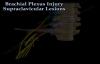 Brachial Plexus Injury, Supraclavicular Lesions  Everything You Need To Know  Dr. Nabil Ebraheim