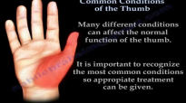 Common Conditions Of The Thumb  Everything You Need To Know  Dr. Nabil Ebraheim