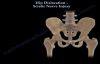Hip Dislocation , Sciatic Nerve Injury  Everything You Need To Know  Dr. Nabil Ebraheim