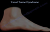 Tarsal Tunnel Syndrome  Everything You Need To Know  Dr. Nabil Ebraheim