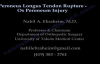 Peroneus Longus Tendon Rupture Os Peroneum Injury  Everything You Need To Know  Dr. Nabil Ebraheim