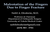 Finger Fractures Malrotation Of The Fingers  Everything You Need To Know  Dr. Nabil Ebraheim