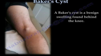 Bakers Cyst  Everything You Need To Know  Dr. Nabil Ebraheim