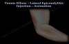 Tennis Elbow Lateral Epicondylitis Injection  Everything You Need To Know  Dr. Nabil Ebraheim