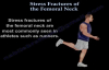 Stress Fractures Of The Femoral Neck  Everything You Need To Know  Dr. Nabil Ebraheim