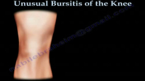 Unusual Bursitis Of The Knee  Everything You Need To Know  Dr. Nabil Ebraheim