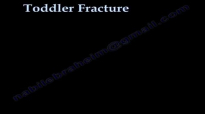 Toddler Fracture , tibial fracture in a child Everything You Need To Know  Dr. Nabil Ebraheim