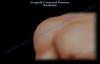 Scapula Coracoid Process Anatomy  Everything You Need To Know  Dr. Nabil Ebraheim