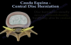 Cauda Equina, Central Disc Herniation  Everything You Need To Know  Dr. Nabil Ebraheim