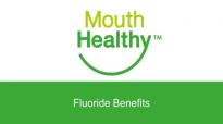 Fluoride Benefits