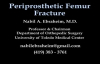 Femur Fracture, Periprosthetic fracture  Everything You Need To Know  Dr. Nabil Ebraheim