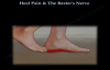 Heel Pain & The Baxters Nerve  Everything You Need To Know  Dr. Nabil Ebraheim