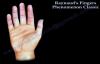 Raynauds Fingers Phenomenon classic  Everything You Need To Know  Dr. Nabil Ebraheim