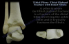 Tibial Pilon Fracture With Intact Fibula  Everything You Need To Know  Dr. Nabil Ebraheim