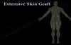 Skin Graft ,major  Part II. Everything You Need To Know  Dr. Nabil Ebraheim