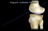 Osgood Schlatter Disease  Everything You Need To Know  Dr. Nabil Ebraheim
