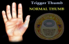 Trigger Thumb  Everything You Need To Know  Dr. Nabil Ebraheim