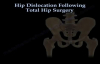 Hip Dislocation Following Total Hip replacement  Everything You Need To Know  Dr. Nabil Ebraheim