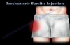 Trochanteric Bursitis Injection  Everything You Need To Know  Dr. Nabil Ebraheim