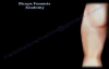 Biceps Femoris Anatomy, Hamstrings  Everything You Need To Know  Dr. Nabil Ebraheim