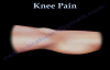Knee Pain , common causes Everything You Need To Know  Dr. Nabil Ebraheim