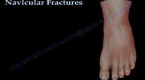 Navicular Fractures  Everything You Need To Know  Dr. Nabil Ebraheim