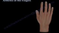 Arthritis Of The Fingers types and patterns  Everything You Need To Know  Dr. Nabil Ebraheim