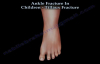 Ankle Fracture In Children Tillaux Fracture  Everything You Need To Know  Dr. Nabil Ebraheim