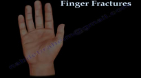 Finger and metacarpal Fractures  Everything You Need To Know  Dr. Nabil Ebraheim