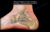 Achilles Tendon rupture , Vulnerablity to Injury  Everything You Need To Know  Dr. Nabil Ebraheim