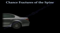 Chance Fractures of the Spine  Everything You Need To Know  Dr. Nabil Ebraheim