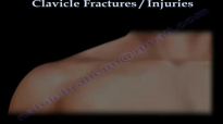 CLAVICLE FRACTURE treatment and repair  Everything You Need To Know  Dr. Nabil Ebraheim