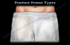 Fracture Femur Types  Everything You Need To Know  Dr. Nabil Ebraheim