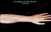 Ganglion Of The Wrist Classic  Everything You Need To Know  Dr. Nabil Ebraheim