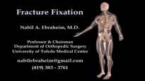 Fracture Fixation Animation  Everything You Need to Know  Dr. Nabil Ebraheim