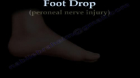 Foot Drop, Peroneal Nerve Injury  Everything You Need To Know  Dr. Nabil Ebraheim