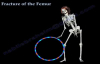Fracture of the Femur and its fixation  Everything You Need To Know  Dr. Nabil Ebraheim